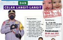 Polda Kalsel Gelar Bakti Kesehatan Gratis Operasi Bibir Sumbing